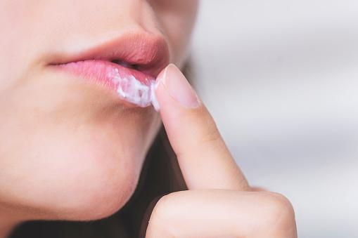 Choroba pocałunków – opryszczka